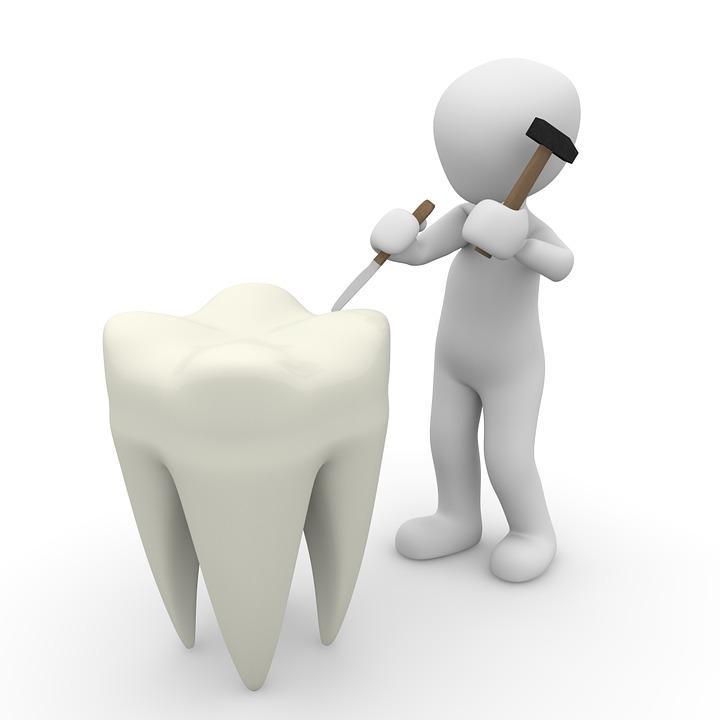 Implantul dentar, indicatii si contraindicatii