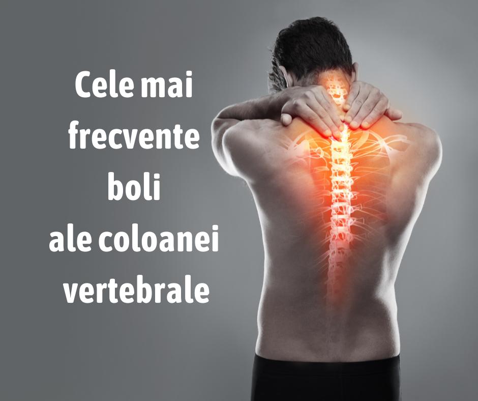 Cele mai frecvente boli ale coloanei vertebrale